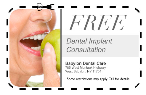 free dental implants
