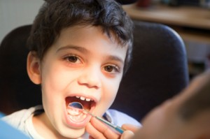 little boy with mouth opened at the dentist