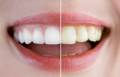 Teeth Whitening Babylon Dental Care