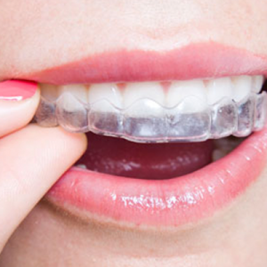 mouthguard-square